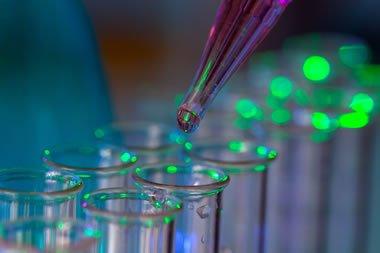 Diagnostic Testing for Legionnaires Disease & Pontiac Fever