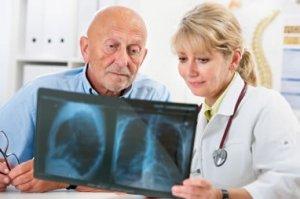 Long-term effects of Legionnaires disease